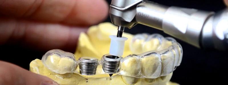 Implanty zębowe – sprawdź kto może je mieć